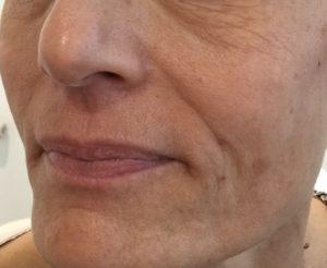 skin booster - après 2