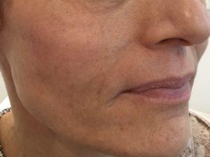 skin booster - après 3