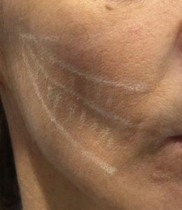 skin booster - axes de traitement 1