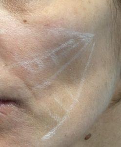 skin booster -axes de traitement 2