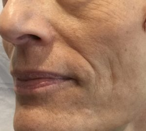 skin booster - avant 2